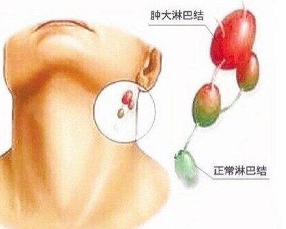 注意了!脖子上长小肉粒是怎么回事? LIFE生活